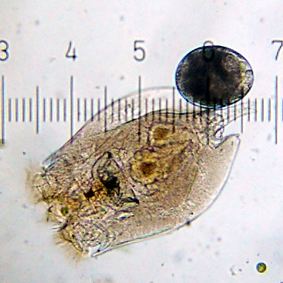 Rotifer. Each numbered tick is 122 µM. Credit: Bob Blaylock, courtesy Wikimedia Commons