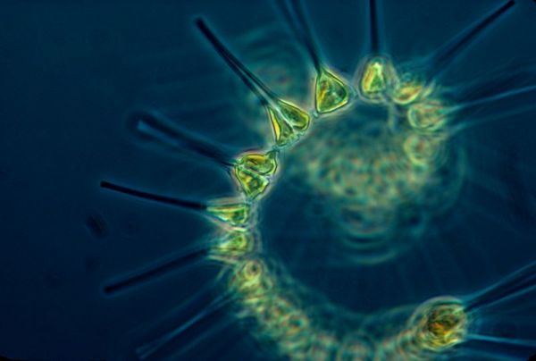 Phytoplankton. Credit: NOAA MESA Project.