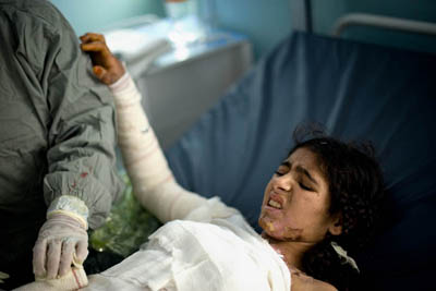 MAG:Shayma Amini, 33, a nurse in a burn unit at Herat Regional Hospital treats Shereen, a teenager who was burned 45 percent of her body—the result of an accident, she claimed.