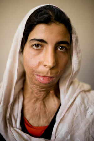 Zahra, 20, burned herself with fuel at age 15 to protest her forced marriage.