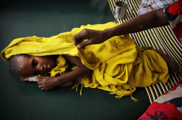 A starving and dehydrated child at Banadir Hospital in the Somali capital Mogadishu.: Stuart Price/UN/Flickr